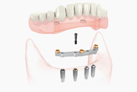 Implantologija hibridna proteza