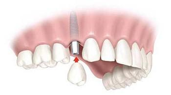 Implantologija nedostatak jednog zuba