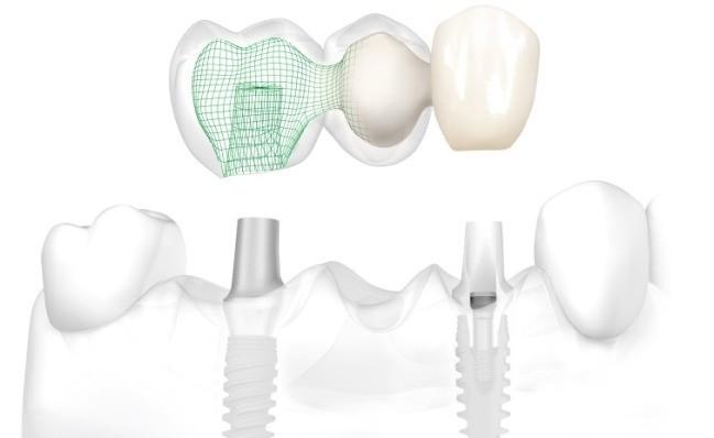 Implantologija nedostatak vise zubi