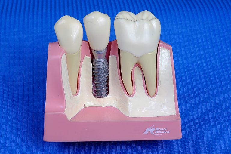 implantologija usluge dentalni implantanti